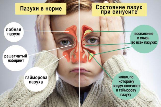 Лечение синусита в Усть-Каменогорске